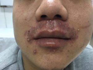 Các thương tổn da do Steroid tại chỗ.