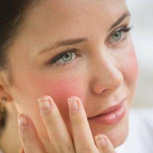 Da nhạy cảm: Cách điều trị không gây kích ứng