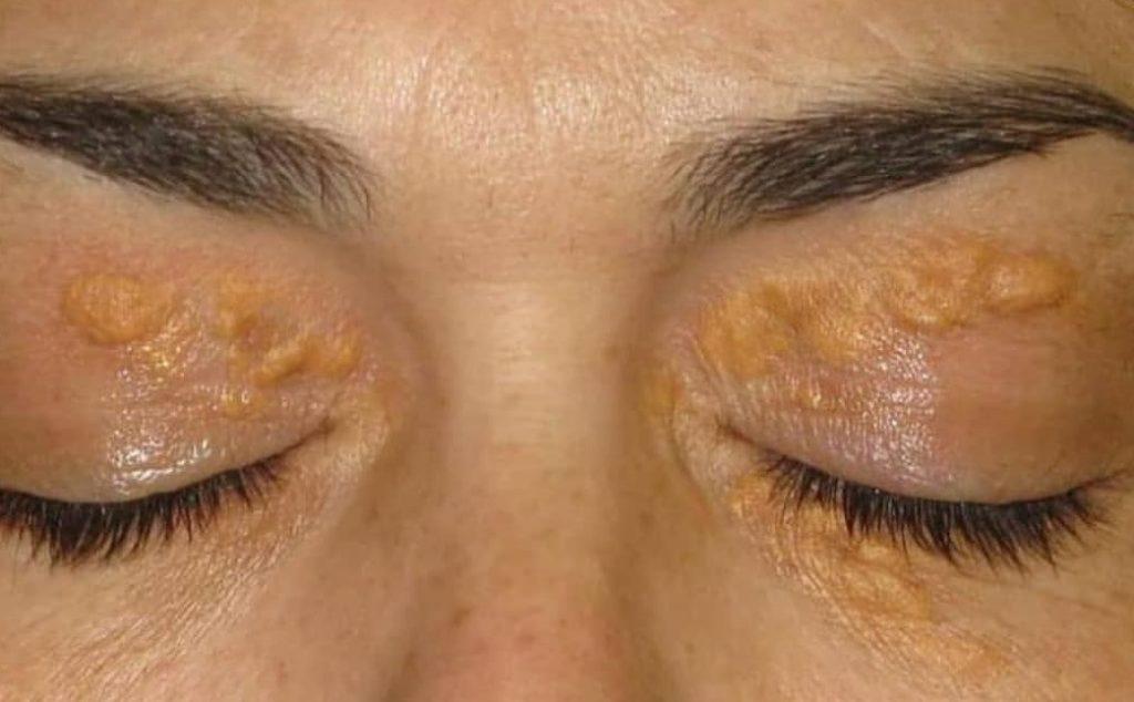 U vàng ở da: Cơ chế bệnh sinh và dấu hiệu lâm sàng. Ảnh minh họa